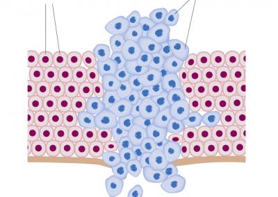 Cancro / Divisione Cellule